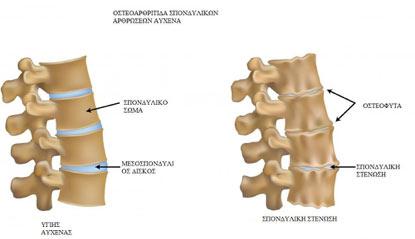 ΕΙΚΟΝΑ 5: απεικόνιση φυσιολογικής σπονδυλικής στήλης (αριστερά) και σπονδυλικής στένωσης,αρθρίτιδας (δεξιά).